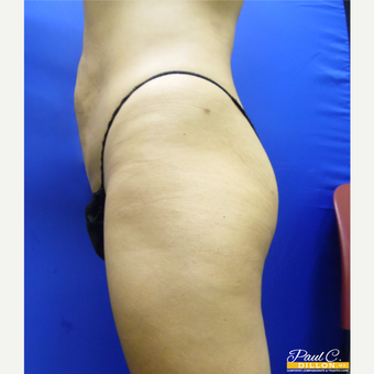 25-34 year old woman treated with Liposuction after 3610974