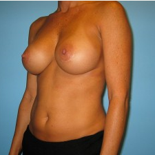 Breast Augmentation after 3665684