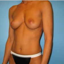 Breast Augmentation before 3665684