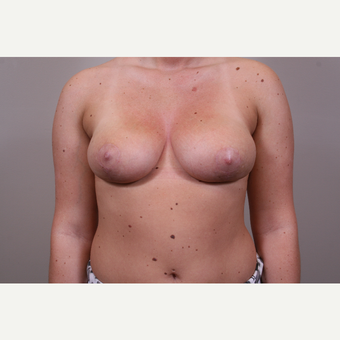 18-24 year old woman treated with Breast Reduction after 3769562