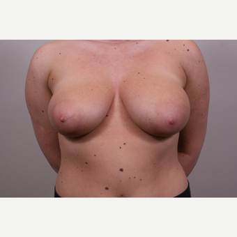18-24 year old woman treated with Breast Reduction before 3769562