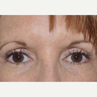 Eyelid Retraction Repair after 2284186