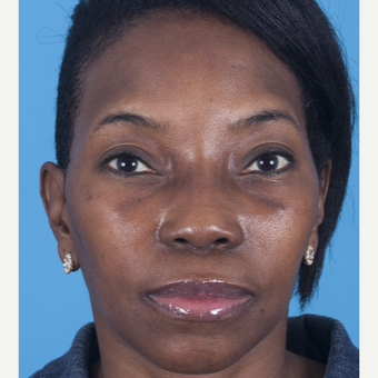 35-44 year old woman treated with African American Rhinoplasty after 3115276