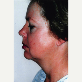 55-64 year old woman treated with Neck Lift before 3764552