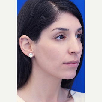 25-34 year old woman treated with Rhinoplasty before 2985953