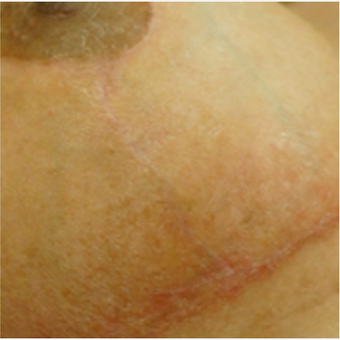 Breast lift scar before and after treatment with embrace® after 2864562
