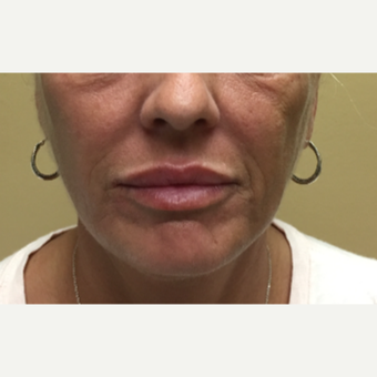 45 year-old woman treated with Restylane Silk injected into the lips after 3499600
