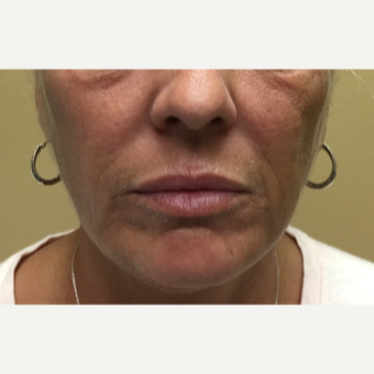 45 year-old woman treated with Restylane Silk injected into the lips before 3499600