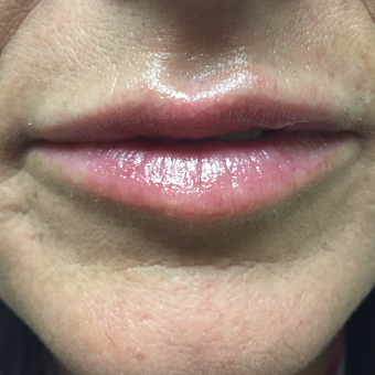 35-44 year old woman treated with Volbella to enhance her lips after 3629937