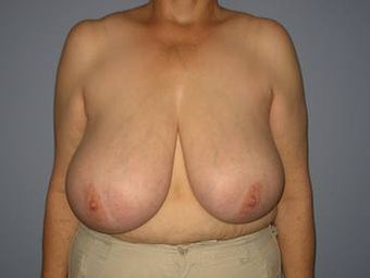 62 Year Old Breast Reduction Patient before 1448282