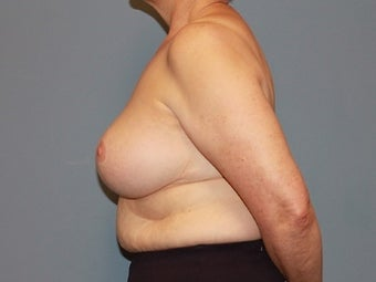 62 Year Old Breast Reduction Patient 1448282