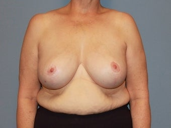 62 Year Old Breast Reduction Patient after 1448282