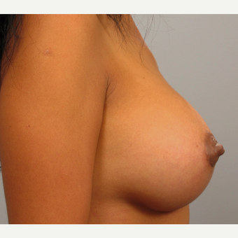 35-44 year old woman treated with Breast Augmentation after 3493278