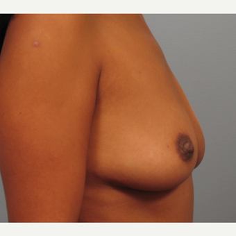 35-44 year old woman treated with Breast Augmentation before 3493278
