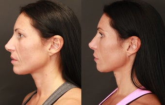 Facial Balancing with Hyaluronic Acid Filler  after 1245074
