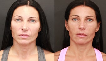 Facial Balancing with Hyaluronic Acid Filler  before 1245074