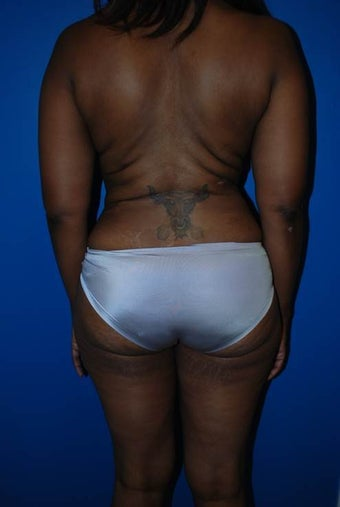 Liposuction of Back after 1181695