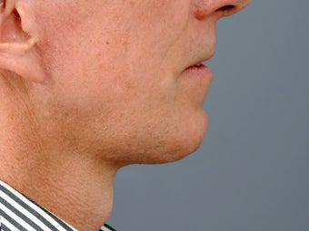 49 year old man with problem neck and 1 year after correction with necklift and lower facelift. after 1273414