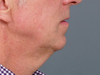 49 year old man with problem neck and 1 year after correction with necklift and lower facelift. before 1273414