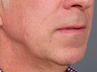 49 year old man with problem neck and 1 year after correction with necklift and lower facelift. 1273414