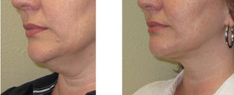 Chin liposuction/Liposculpture