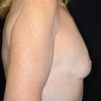 45-54 year old woman treated with Breast Reduction after 3810485