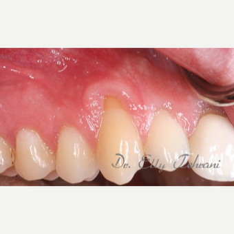 Gum recession on multiple teeth before 2955232