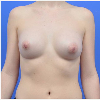 18-24 year old woman treated with Breast Augmentation after 3170862