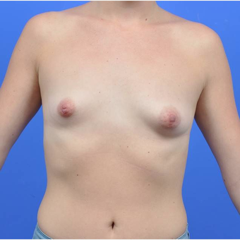18-24 year old woman treated with Breast Augmentation before 3170862
