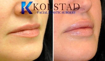 Natural Lip Augmentation 1260555
