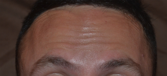 30 Year Old Male Treated for Forehead Lines after 1380337
