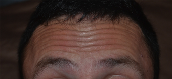 30 Year Old Male Treated for Forehead Lines before 1380337