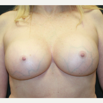 55-64 year old woman treated with Breast Implant Revision after 3225680