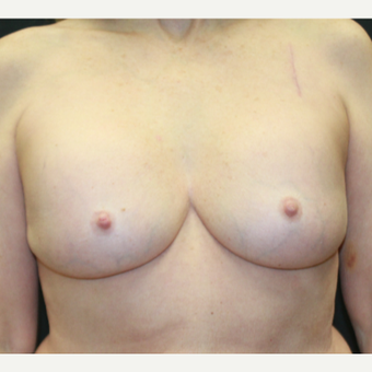 55-64 year old woman treated with Breast Implant Revision before 3225680
