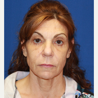 61 year old woman treated with Fat Transfer, face/neck lift, CO2 laser skin, upper eyelids before 3320545