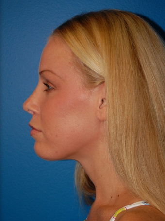 Revision Rhinoplasty after 1252139