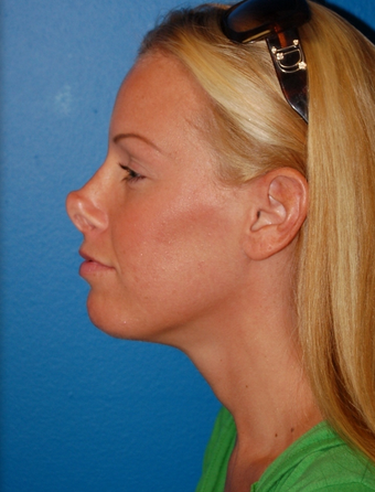 Revision Rhinoplasty before 1252139