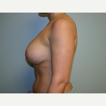 Breast Augmentation after 3560708