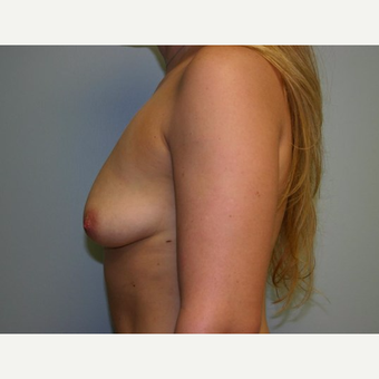 Breast Augmentation before 3560708