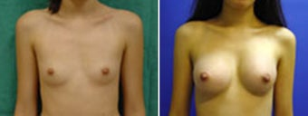 Breast Augmentation before 8973