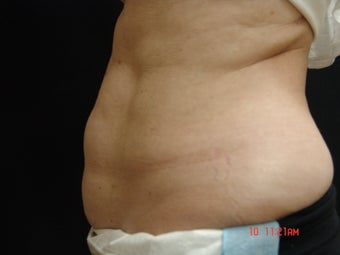 Coolsculpting before 495175