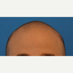 25-34 year old man treated with Hair Transplant before 3066715