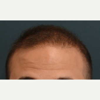 25-34 year old man treated with Hair Transplant after 3066715