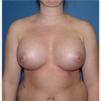 Breast Implants after 3807244