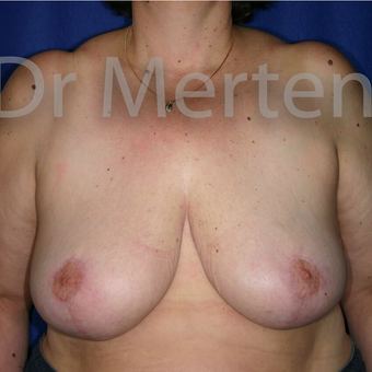 Breast Reduction after 3681260