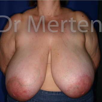 Breast Reduction before 3681260