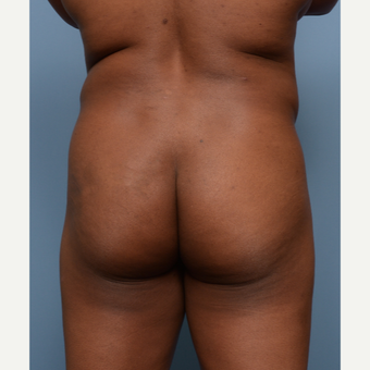 35-44 year old woman treated with Liposculpture before 3502189
