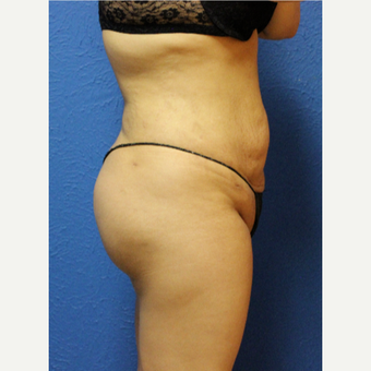 25-34 year old woman treated with Brazilian Butt Lift after 3456692
