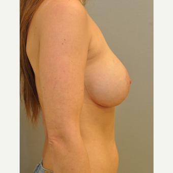 25-34 year old woman treated with Breast Augmentation after 3842510