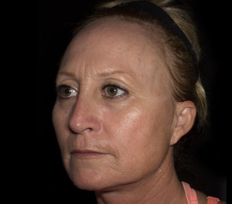 Middle Aged Female Treated for Middle Face Volume Loss and Cheek Contouring before 1367273